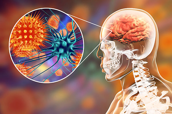 Coronavirus also appears to affect the brain-AGAPEN